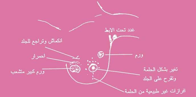 أسباب سرطان الثدي: Fig-03.jpg