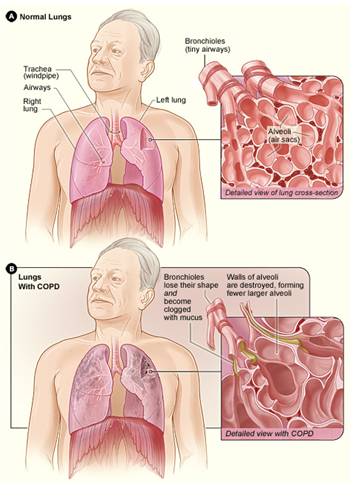 COPD 2.png